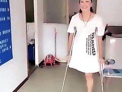 čínsky amputee dievča