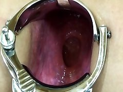 Elmer wife extreme anal speculum play