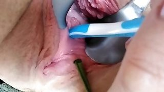 peehole stretching part 2