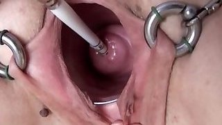 Extreme Real Cervix Fucking Insertion Objects