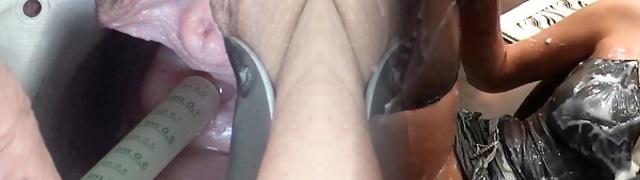Insertion of Semen with Injection Needle into Uterus